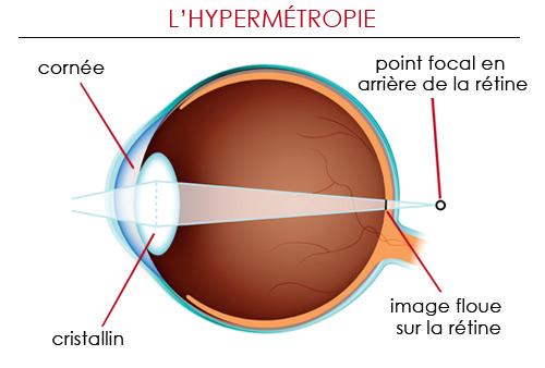 Opération hypermétropie